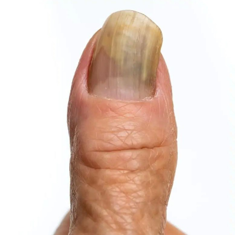 Finger nail fungus in the advanced stage on the thumb.
