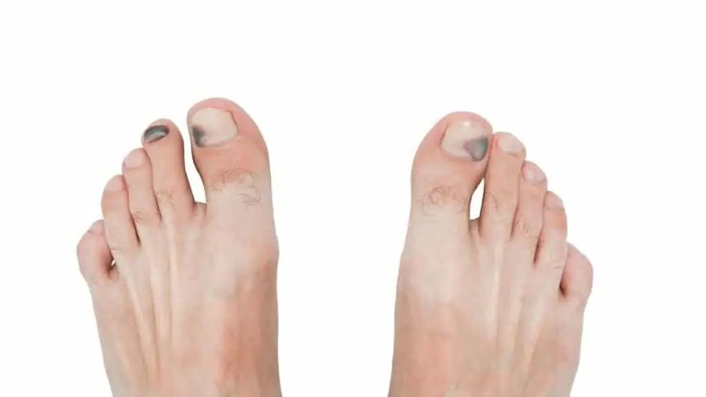 A dark toenail is often the result of pressure.