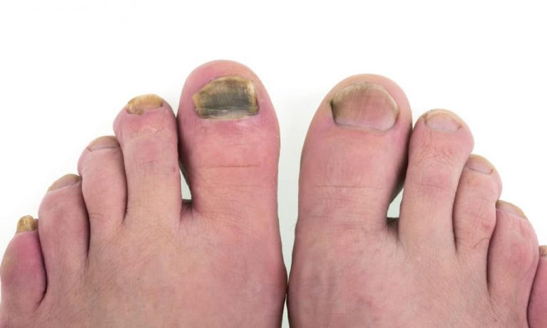 Black nail fungus on the right big toe caused by a mold. The nail fungus spread to the left foot.