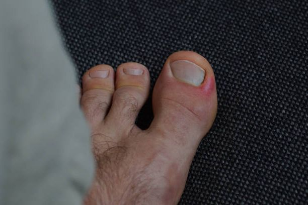 In this picture you can see the inflamed nail fold on the big toe.