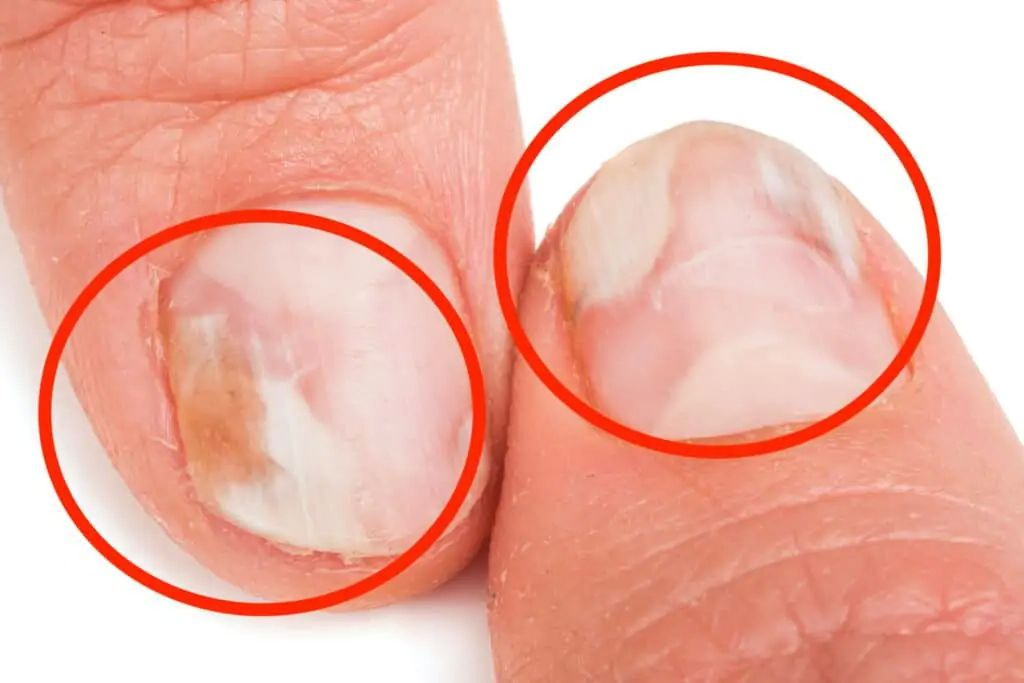 Nail fungus on the finger: In the first phase, the nail changes color and loses its shine.
