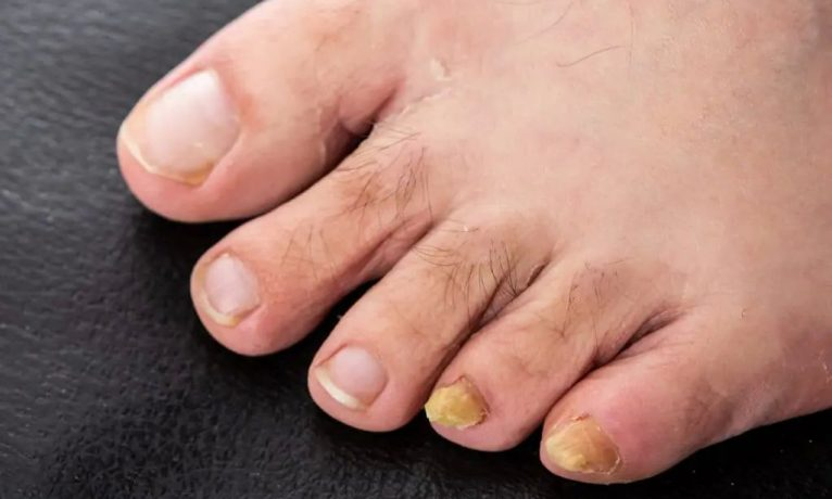 The nail fungus can be recognized by the yellow discoloration of the nail.