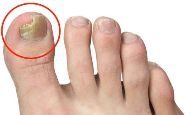 Toenail fungus on the big toe in the terminal stages.