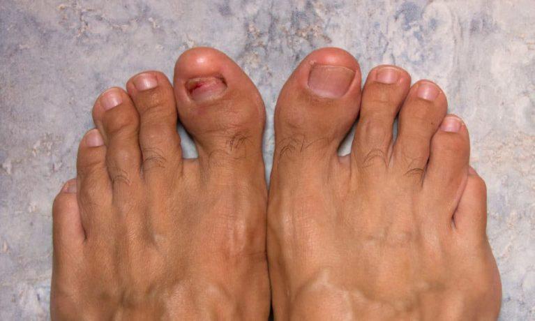Detached nail on the big toe due to nail fungus.