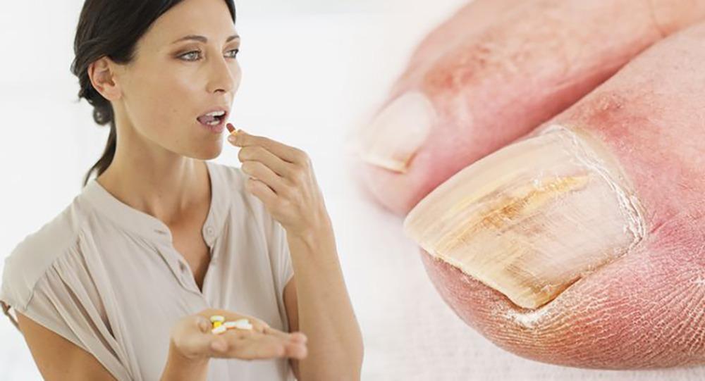 Vitamins for nail fungus