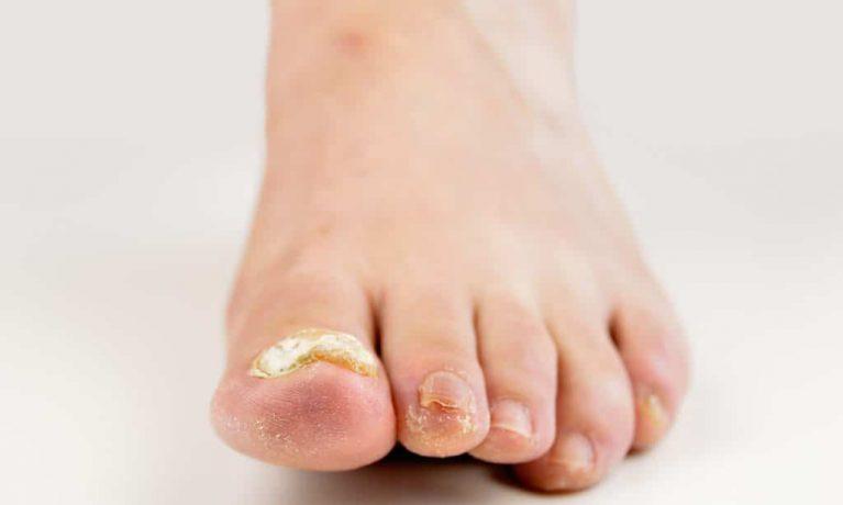 Horny white nail fungus on the big toe.